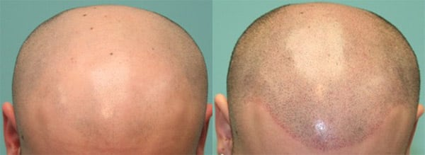 Shaved head hairline restoration
